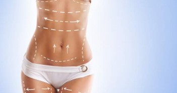 liposuction and cellulite removal, fat